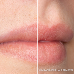 Before and After Preview for Lip