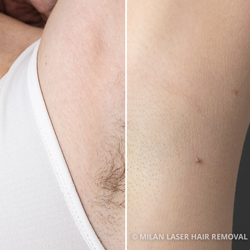 Before and After Preview for Underarm