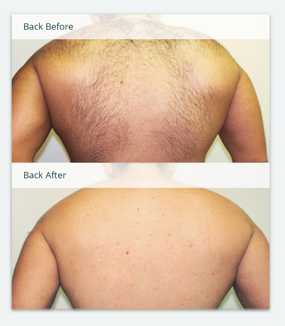Man's Back, Before & After Laser Hair Removal