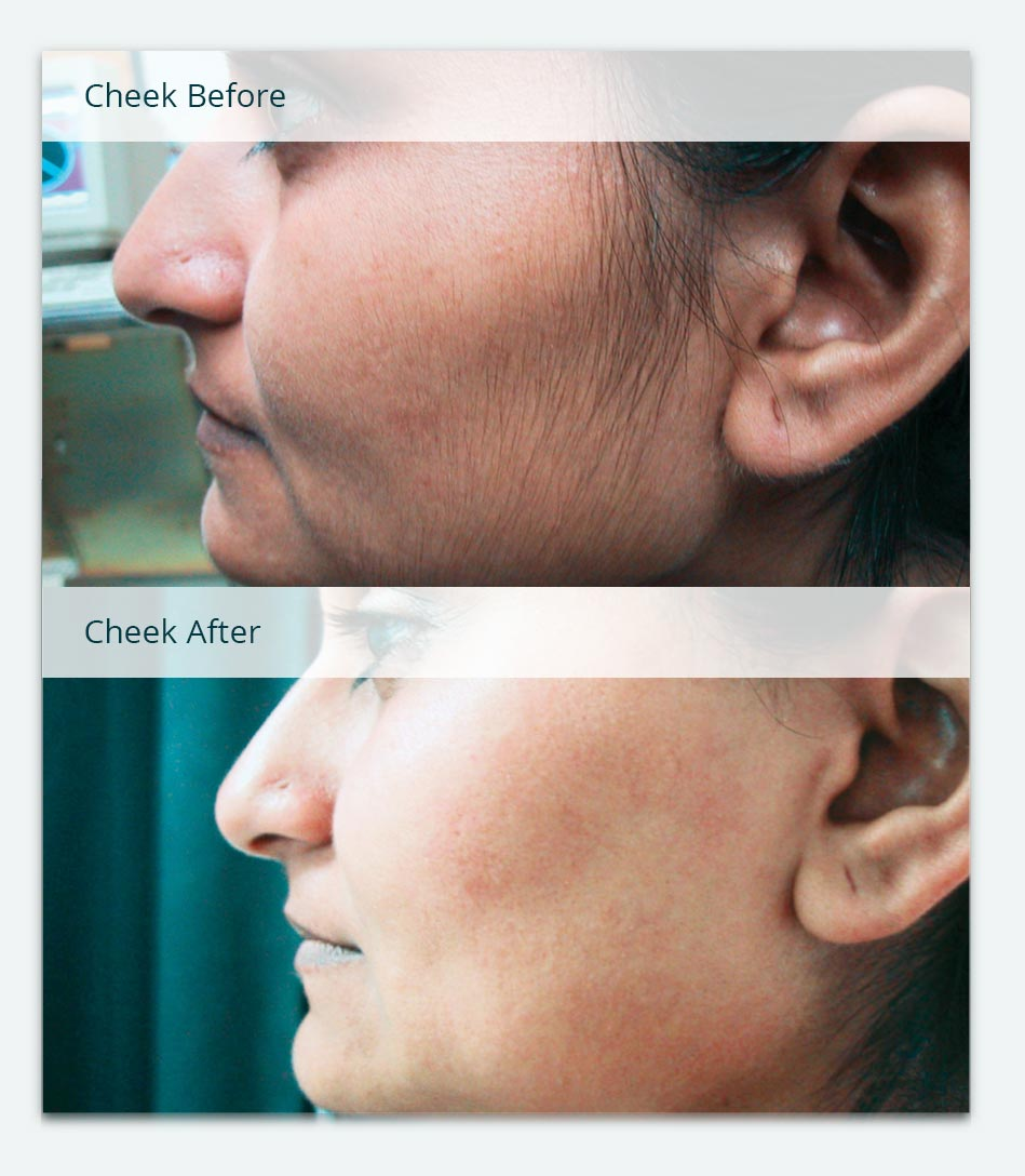 Cheek, Sideburns, Before & After Laser Hair Removal