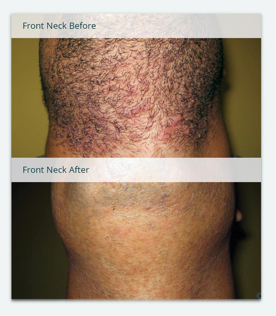 Neckline, Ingrown Hairs, Before & After Laser Hair Removal