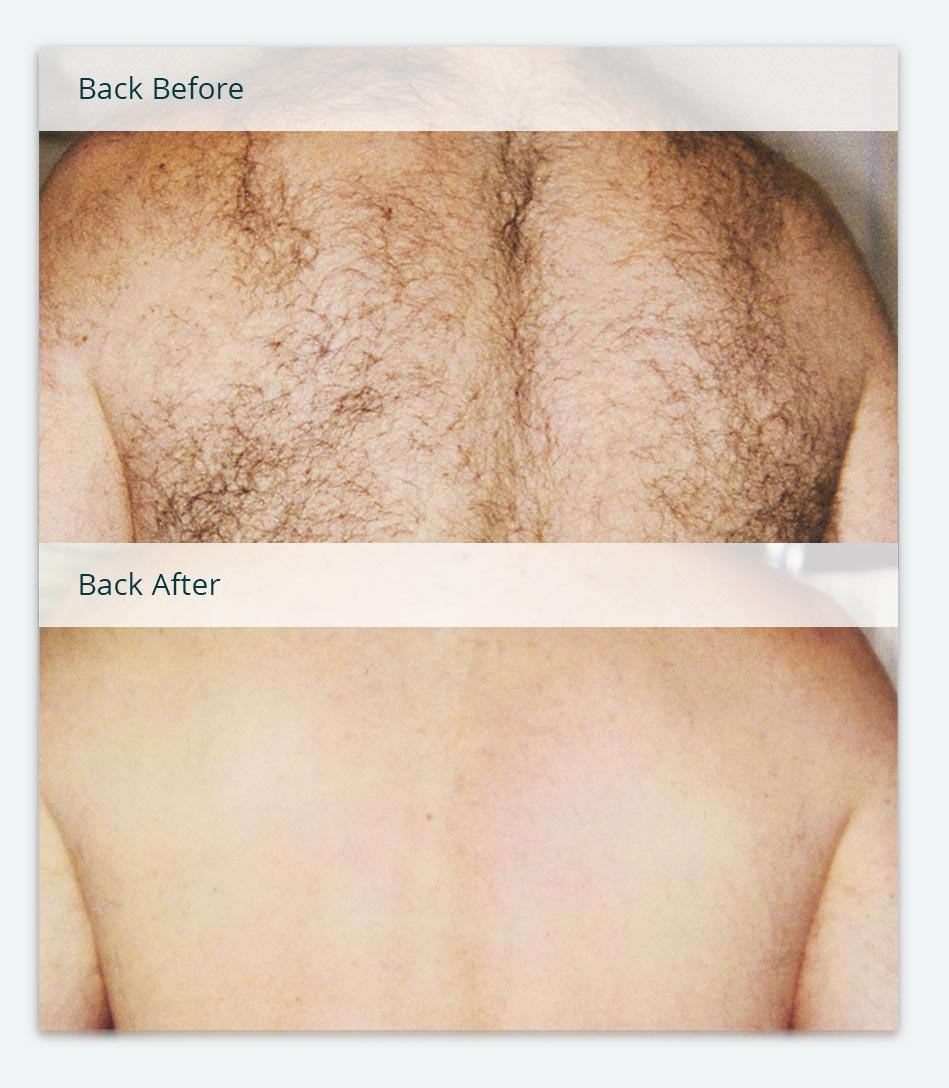 Back, Before & After Laser Hair Removal