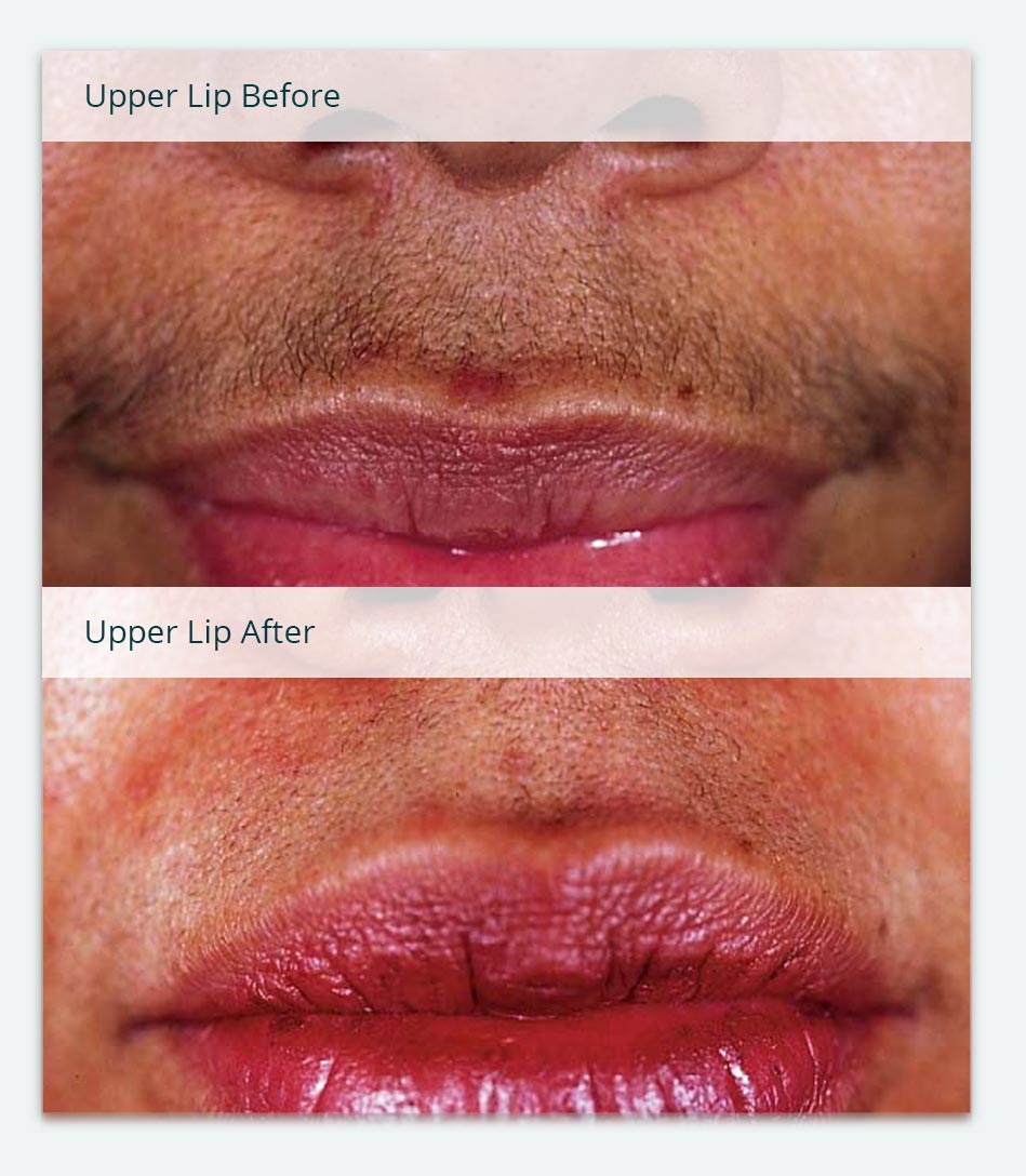 Lip, Before & After Laser Hair Removal