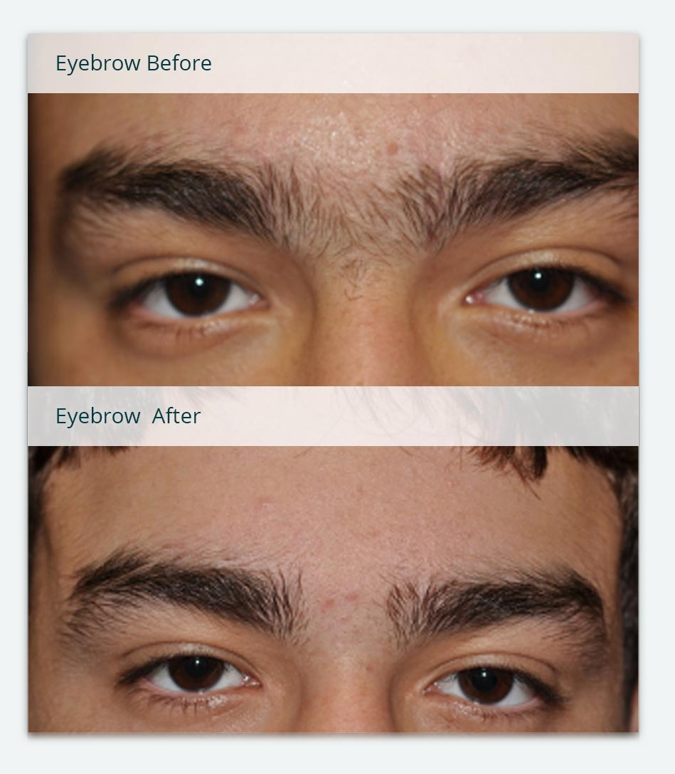 Uni-brow, Before & After Laser Hair Removal