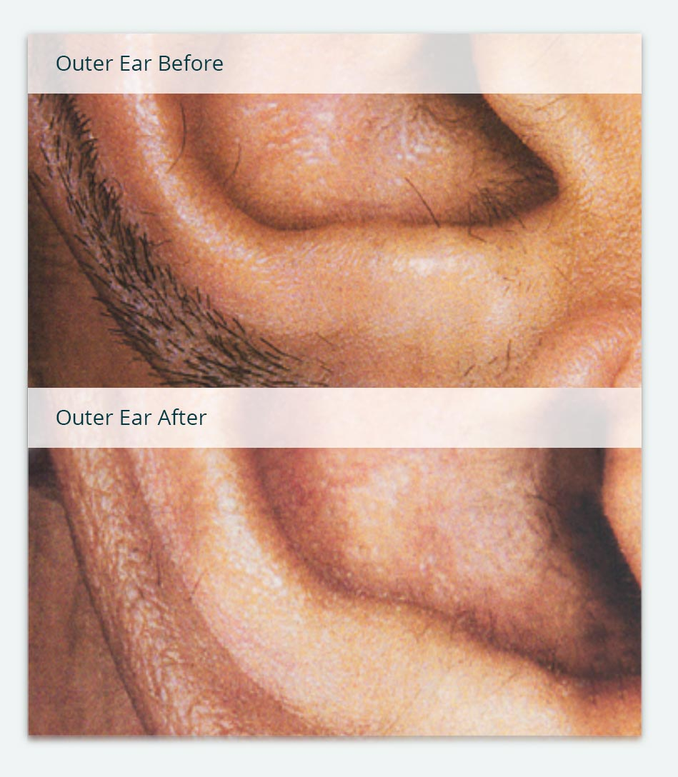 Ears, Before & After Laser Hair Removal