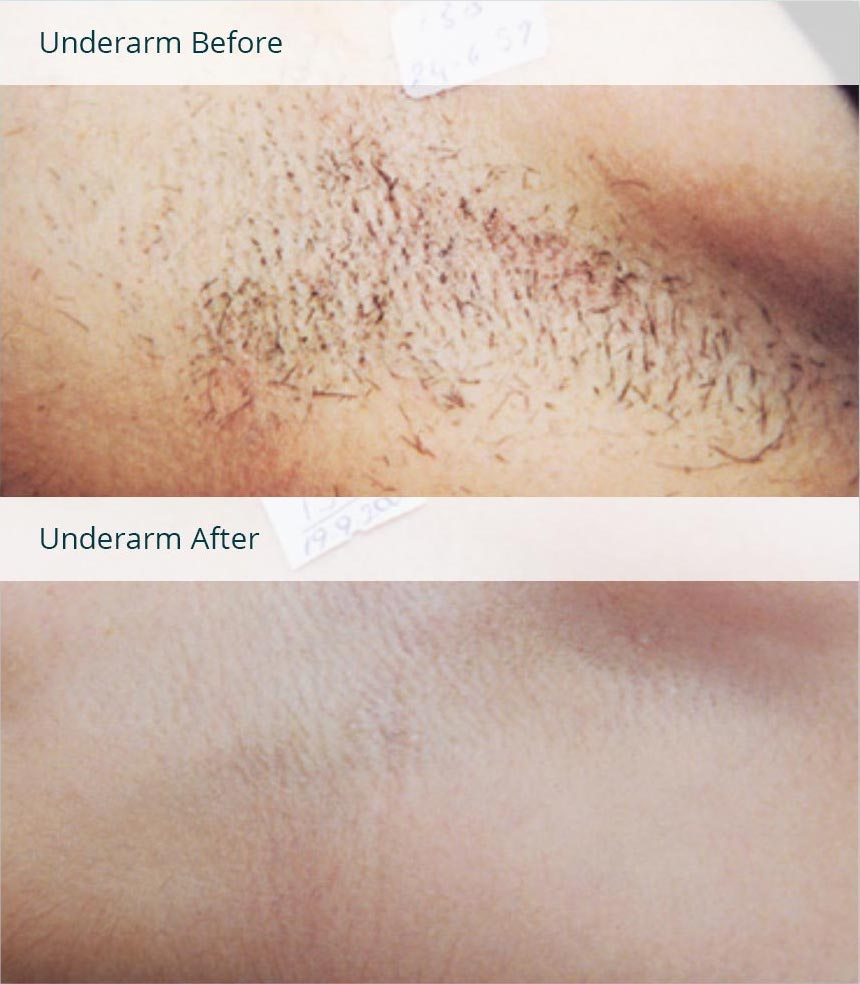 Before After Photos Of Laser Hair Removal Milan Laser In