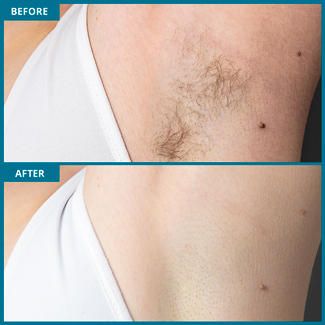 Underarm Laser Hair Removal Photo, Before & After