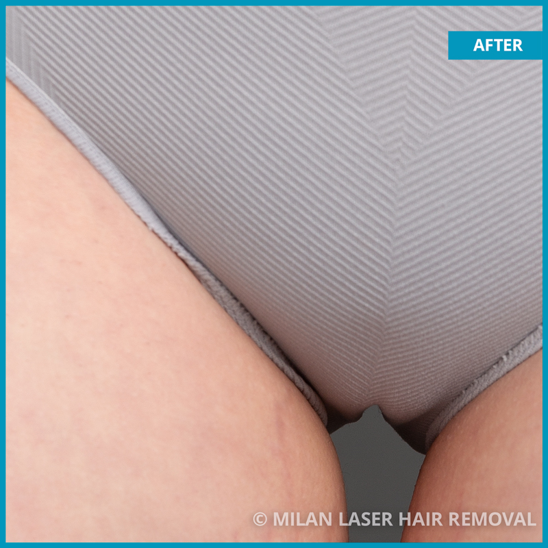 Before And After Images of Brazilian Style Laser Hair Removal