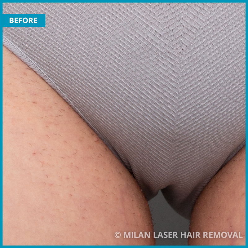 Bikini Before After Photos Of Laser Hair Removal Milan Laser