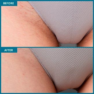 Bikini Laser Hair Removal Photo, Before & After