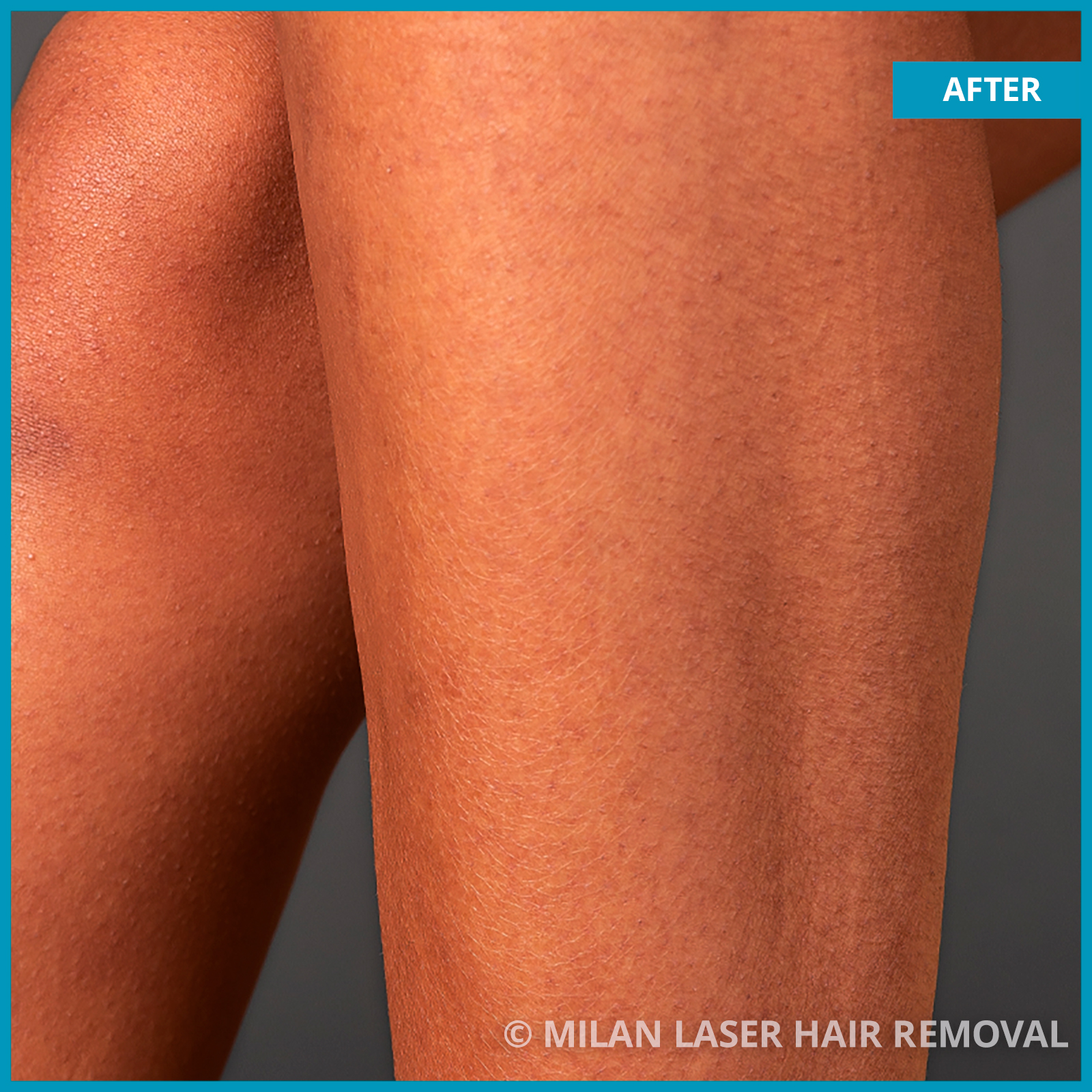 Images of Legs and Feet Before And After Laser Hair Removal