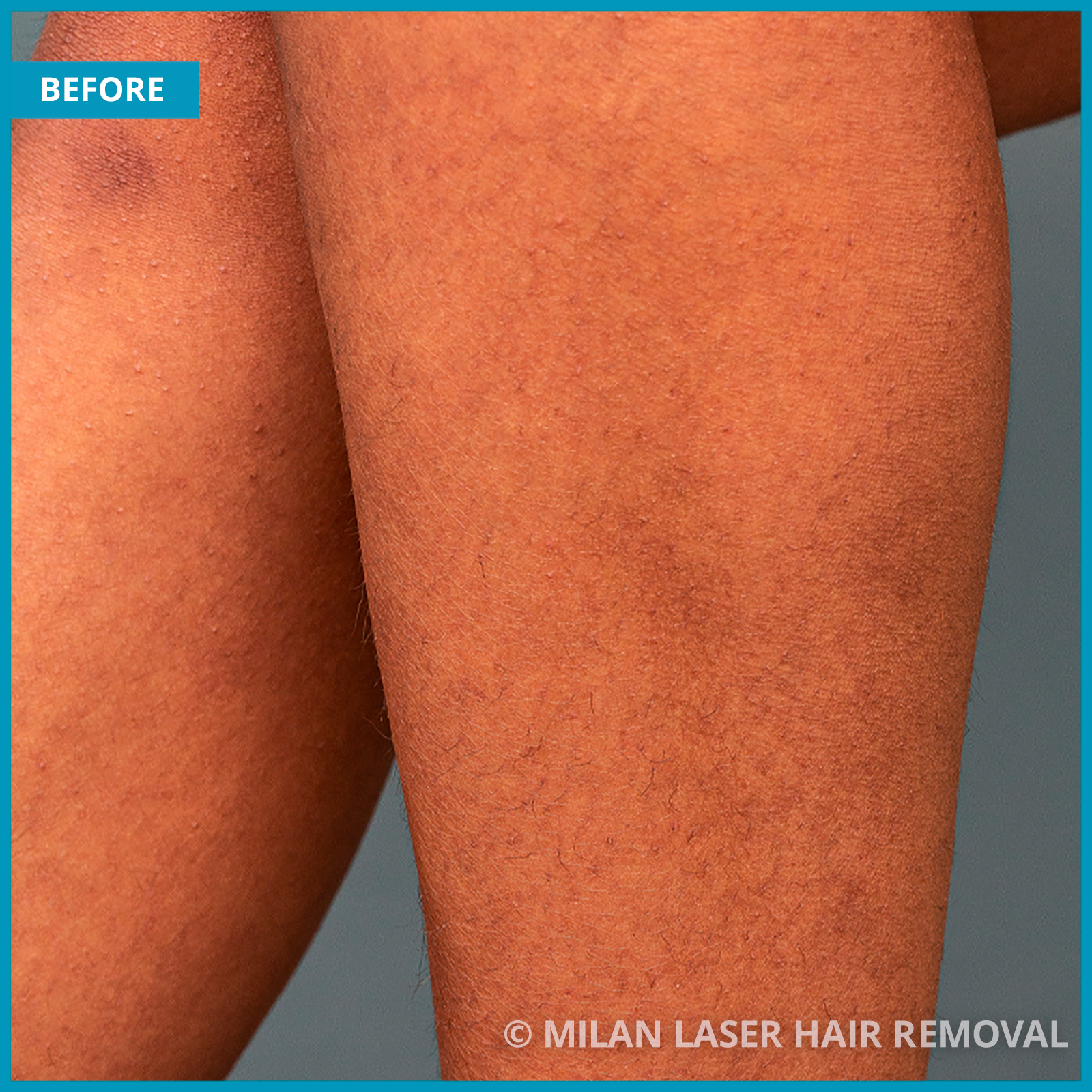Before And After Images of Legs Style Laser Hair Removal