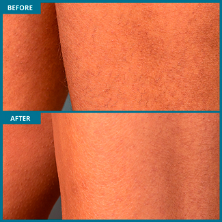 Legs Laser Hair Removal Photo, Before & After