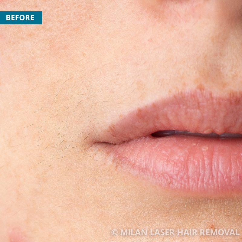 Images of a Face Before And After Laser Hair Removal