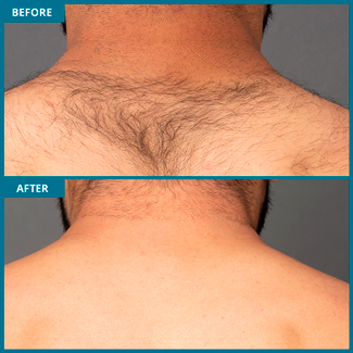 Neck Laser Hair Removal Photo, Before & After