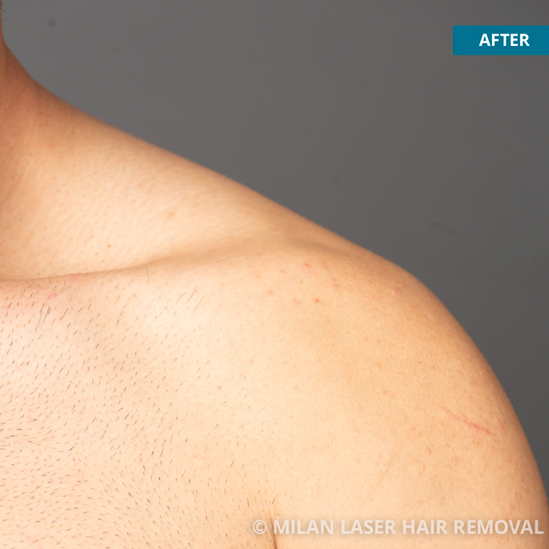 Images of Men Before And After Laser Hair Removal
