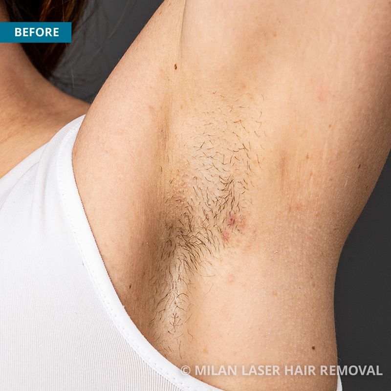 Images of Underarms Before And After Laser Hair Removal