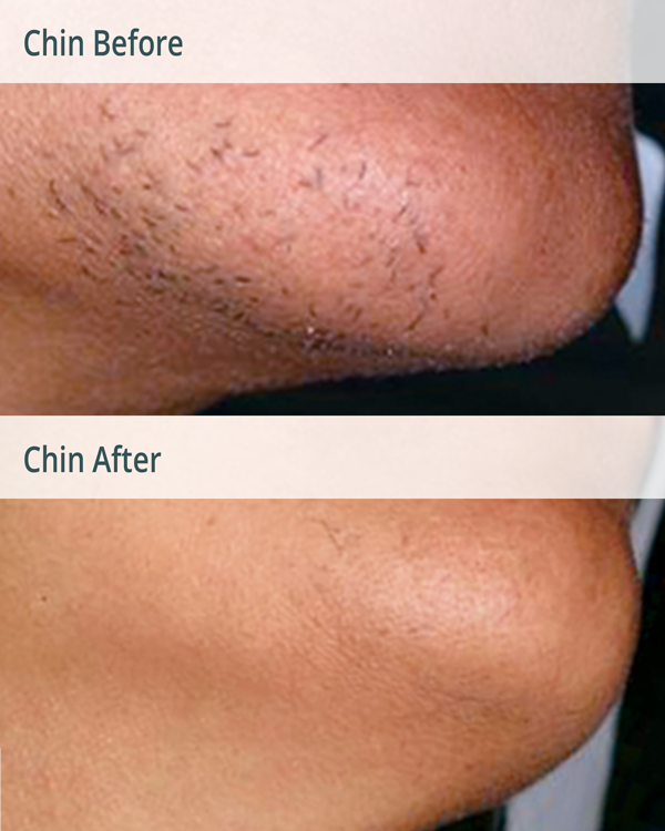 Transgender Permanent Laser Hair Removal